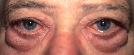 male blepharoplasty before