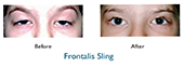 ptosis in children before and after ptosis surgery