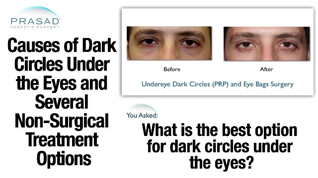 Dark circles under eyes | Causes & Treatment - NYC