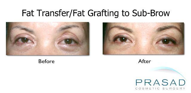 Fat Graft in Sub Brow - Upper Eye