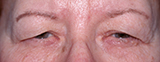 female Caucasian before upper eye lift surgery