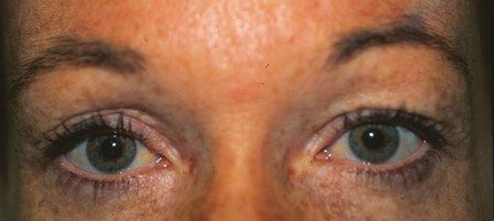 before eyelid blepharoplasty