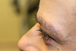 after eyelash transplant
