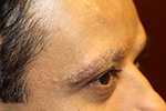 before eyelash transplant