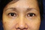 Before Pelleve wrinkle reduction treatment