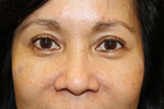 After Pelleve wrinkle reduction treatment