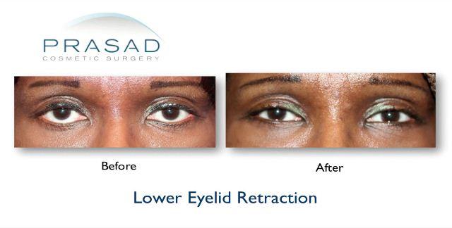 Lower Eyelid Retraction