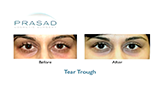 before and after non-surgical treatment for dark circles