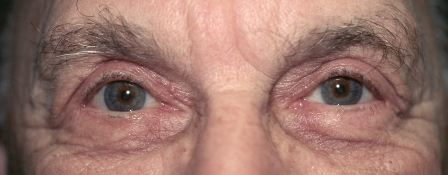 eyelid ptosis after surgery
