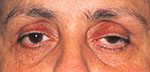 Before ptosis surgery