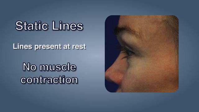 Static Wrinkles