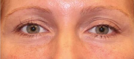 non surgical eyelift before and after