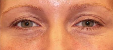 non surgical eyelift before