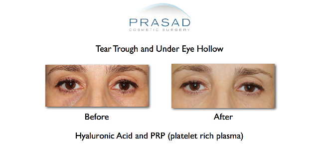 Tear trough with PRP