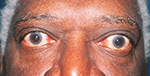 African-American male with thyroid eye disease