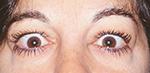 Middle age female with thyroid eye disease