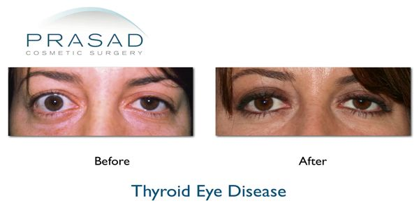 Thyroid Eye Disease Treatment Dr Amiya Prasad Eyelifts New York