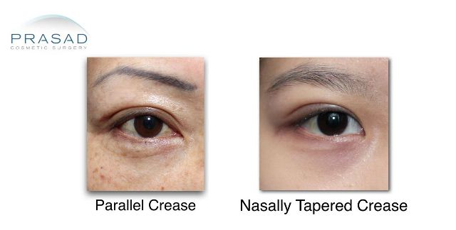 Types of Asian Eyelid Creases