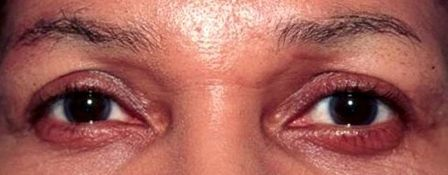 African-American woman after blepharoplasty