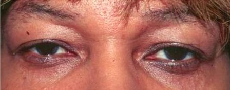 African-American woman before blepharoplasty