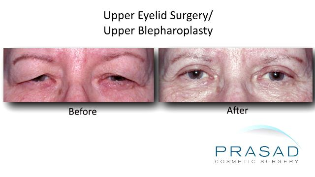 Upper Eyelid Surgery before and after