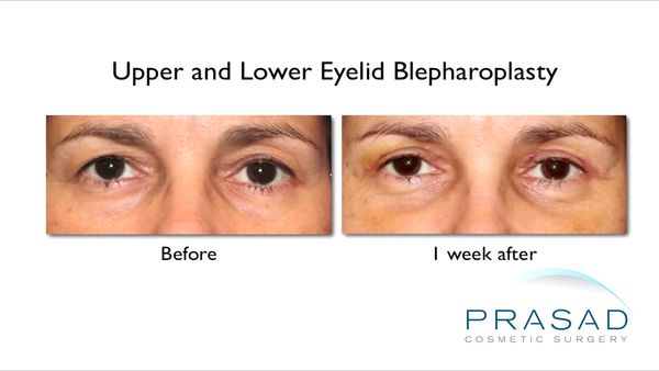 Upper and Lower Eyelid Surgery