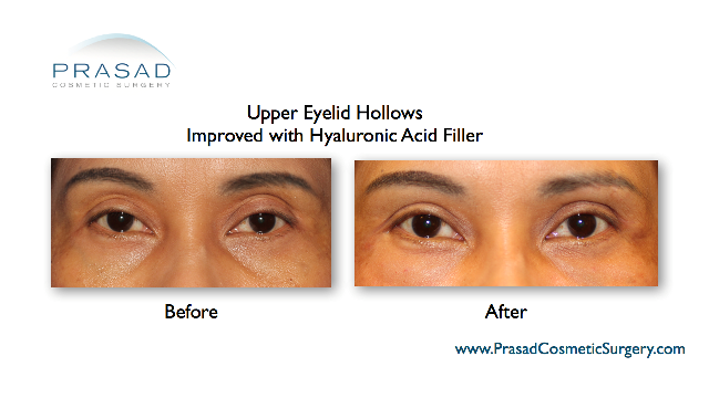 Upper eyelid hollows improved with hyaluronic acid filler