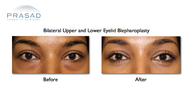 bilateral lower eyelid transconjunctival