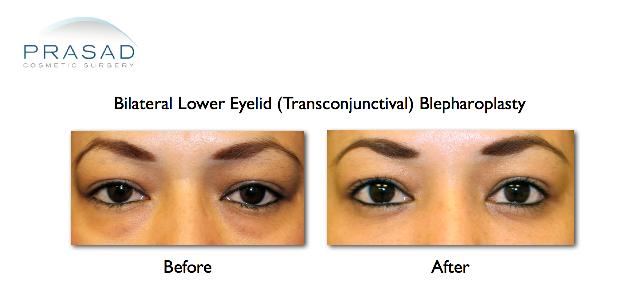 bilateral lower eyelid transconjunctival blepharoplasty before and after