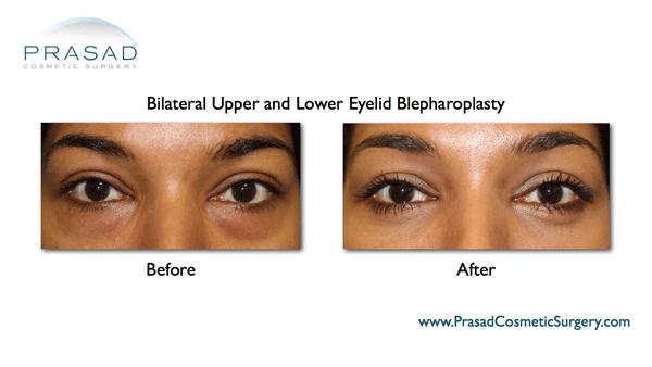 upper and lower eyelid blepharoplasty