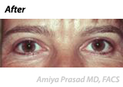 Upper Eyelid Blepharoplasty Patient After