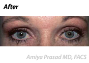 SmartLift Eyelift Patient After