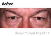 Upper and Lower Blepharoplasty Patient Before surgery