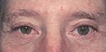 blepharoplasty for men, after surgery