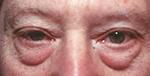 blepharoplasty for men, before surgery