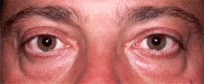 PUFFY LOWER EYELIDS – MAN Before