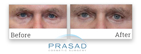 eyelid surgery patient review with photo