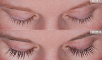 latisse -eyelash growth