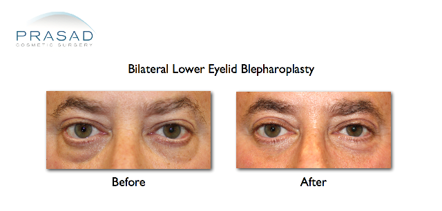 lower eyelid blepharoplasty before and after