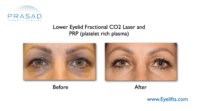 lower eyelid fractional CO2 and PRP