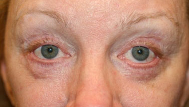 lower eyelid retraction after blepharoplasty