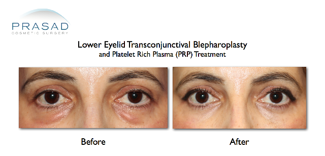 lower eyelid transconjunctival blepharoplasty and prp platelet rich plasma treatment before and after by Dr Amiya