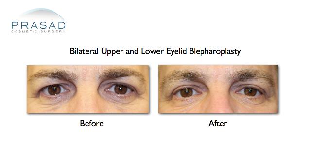 male upper and lower eyelid blepharoplasty
