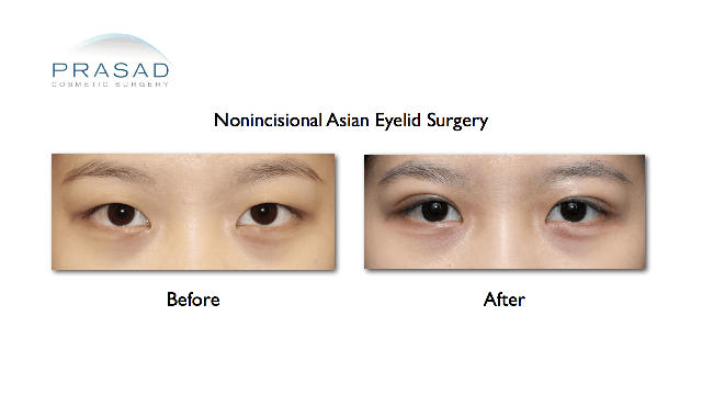 non-incisional Asian double eyelid surgery before and after