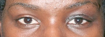 eyelid ptosis correction surgery after