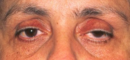 ptosis surgery before and after