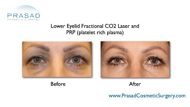 transconjunctival lower eyelid blepharoplasty