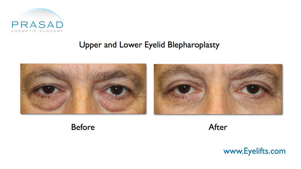 before and after upper and lower eyelid bleph
