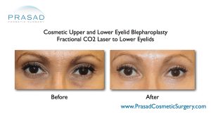 eyelid blepharoplasty with PRP